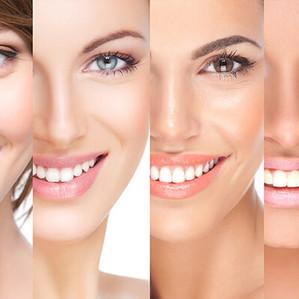Veneers: Dental veneers are your key to a Hollywood smile