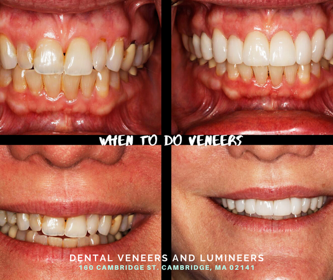 When to Do Veneers