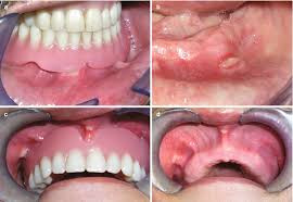 Causes of Complete Dentures Renewal