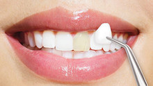 Do porcelain veneers need to be replaced?
