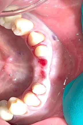 dental bridge 5.jpg