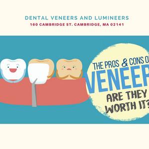 Veneers Teeth: Pros and Cons