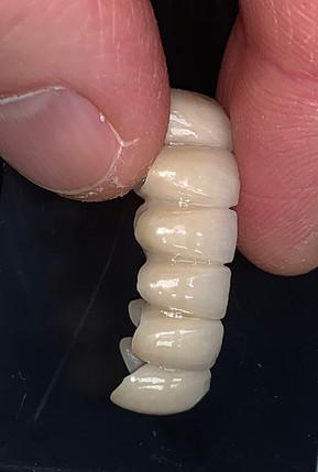 dental bridge 2.jpg