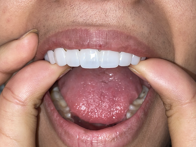 What's the difference between composite veneers and porcelain?