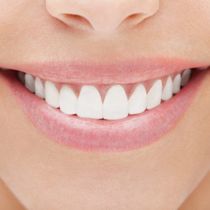 Veneers are life-savers for under-pressure smiles