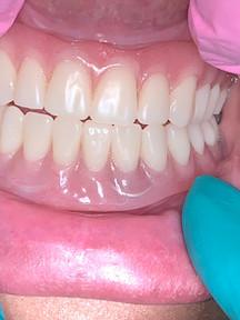 Dentures  Somerville MA.jpeg