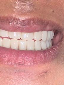 Dentures Cambridge MA.jpeg