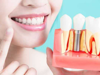 Dental Implant FAQs: How Much Does It Cost?