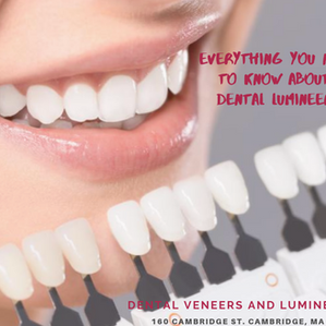 Everything You Need to Know About Dental Lumineers