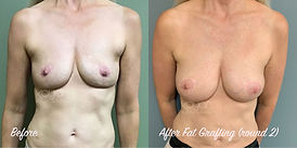 Plastic Surgery Before and After: 2 rounds of fat grafting (fat transfer) to breasts following breast implant removal (explant).