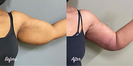 Plastic Surgery Before and After: Brachioplasty (arm lift)