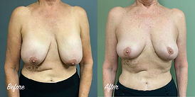 Plastic Surgery Before and After: Breast Lift, Mastopexy, Breast Implant Removal (Explant), Capsular Contracture