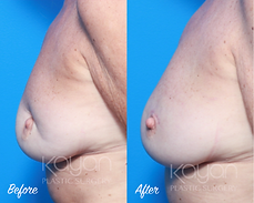 Plastic Surgery Before and After: Breast reconstruction following lumpectomy (cancerous breast mass removal).