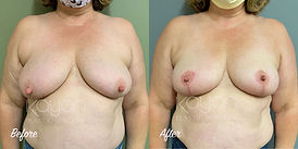 Plastic Surgery Before and After Pictures: Breast Lift, Mastopexy, Wise Pattern Incision, Anchor Lift