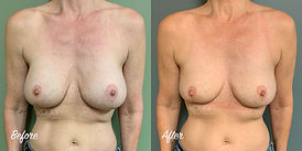 Plastic Surgery Before and After: Breast Implant Removal (Explant) with Wedge Excision, En Bloc Removal