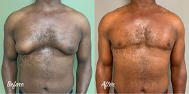 Plastic Surgery Before and After: Gynecomastia excision, double incision with free nipple grafting