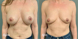 Plastic Surgery Before and After: Breast Implant Removal (Explant) with Total Capsulectomy, Capsular Contracture