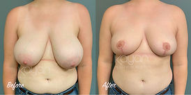 Plastic Surgery Before and After: Breast Reduction, 34G to C bra size