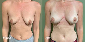 Plastic Surgery Before and After: Breast Augmentation, 265cc Silicone Breast Implants