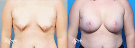 Plastic Surgery Before and After: Breast lift (mastopexy) with implants, breast augmentation, tuberous breast