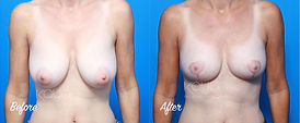 Plastic Surgery Before and After: Breast Lift (Mastopexy), Small Breast Reduction