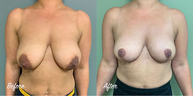 Plastic Surgery Before and After: Breast Reduction, 32FF to 34D bra size
