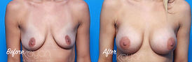 Plasti Surgery Before and After: Breast Augmentation, 265cc silicone breast implants