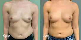 Plastic Surgery Before and After: Liposuction of abdomen, flanks, and inner thighs with fat grafting (fat transfer) to breasts.