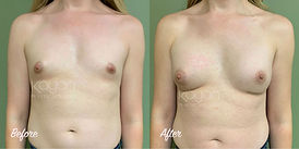Plastic Surgery Before and After: Male-to-female (MTF), gender affirming breast augmentation top surgery with silicone breast implants for a transgender patient.