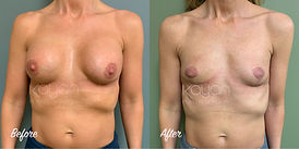 Plastic Surgery Before and After: Breast Implant Removal (Explant) with Breast Lift (Mastopexy), En Bloc Removal, Capsular Contracture