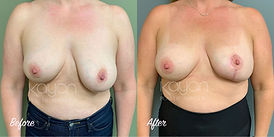 Plastic Surgery Before and After: Breast asymmetry reconstruction, breast implant replacement, breast augmentation, breast lift (mastopexy) with implants, breast reduction