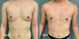 Plastic Surgery before and After: Keyhole incision top surgery, female-to-male (FTM) breast surgery, gender affirming breast surgery