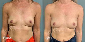 Plastic Surgery Before and After: Fat grafting (fat transfer) to breasts from abdomen, flanks, inner and outer thighs with breast scar release following breast implant removal (explant).
