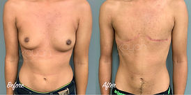 Plastic Surgery Before and After: Top surgery with no nipples, female-to-male (FTM) chest surgery, gender affirming breast mastectomy
