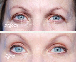 Plastic Surgery Before and After: Upper eyelid blepharoplasty (eyelid lift) to address sagging upper eyelids.