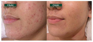 acne2.png