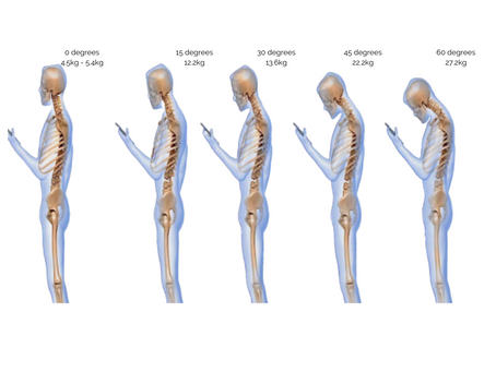 Posture and Tech Neck