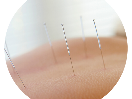 Dry Needling | What is it? Does it Hurt? Will it work for me?