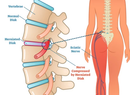 How To Relieve Lower Back Pain (also known as Sciatica)?