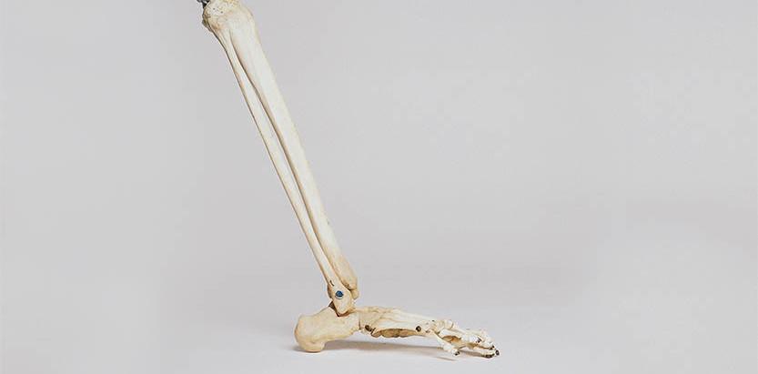 Fraturas ósseas