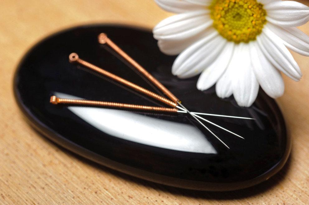 Acupuncture General Medicine