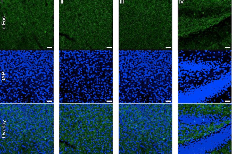 Cérebro de ratos com hipocampo estimulado