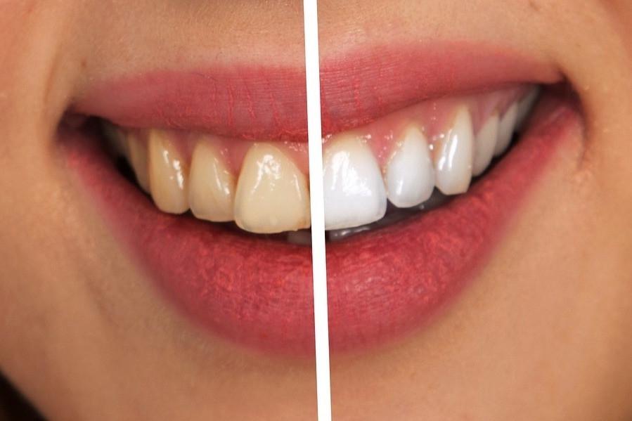 Boca com dentes amarelados e brancos