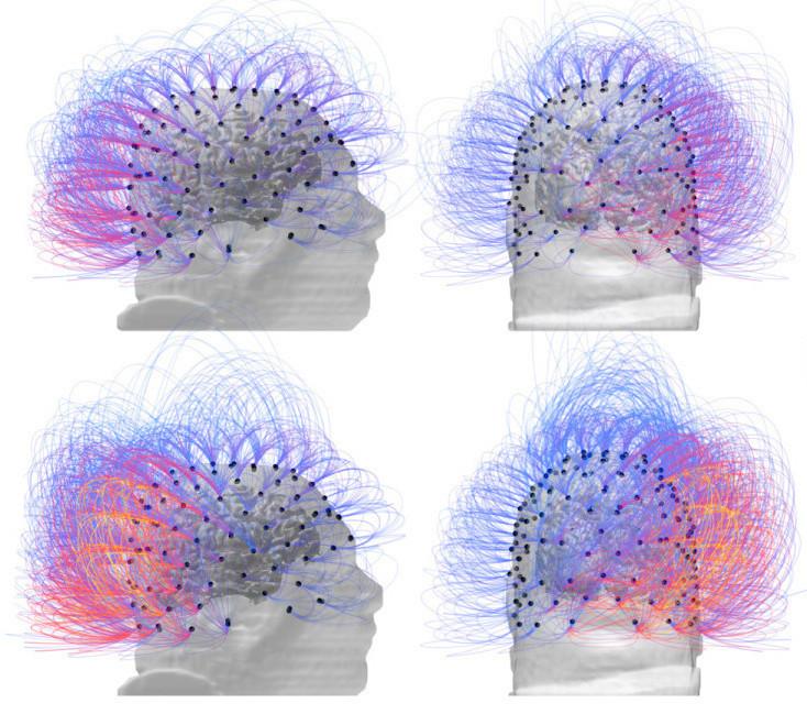 Cérebro com estimulação do nervo vago