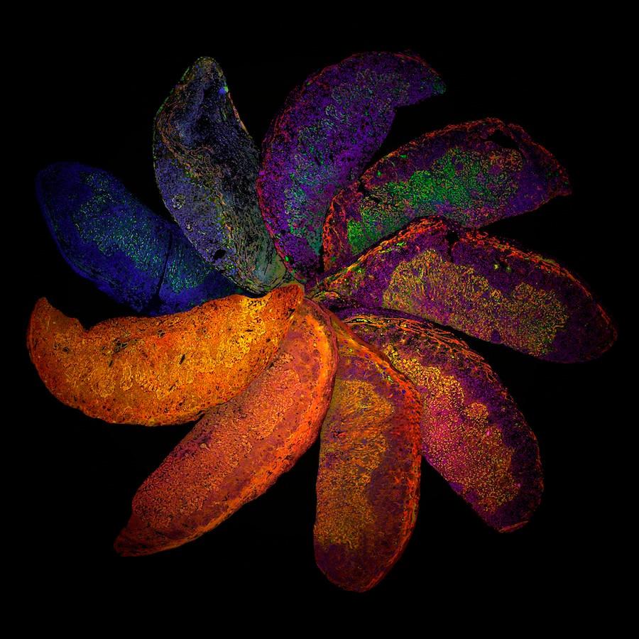 Arco-íris da placenta