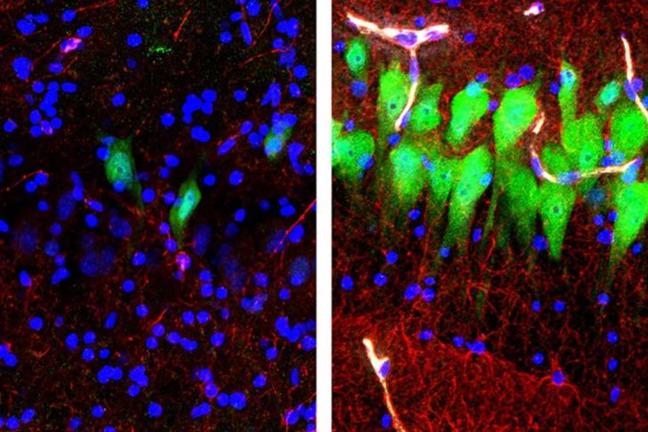 Imagens de cérebro de porco morto com neurônios reavivados