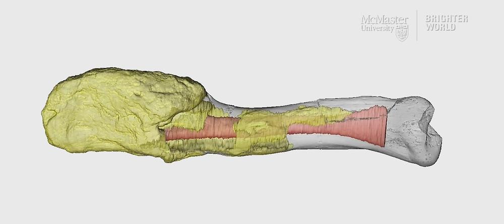 osso de dino com osteosarcoma