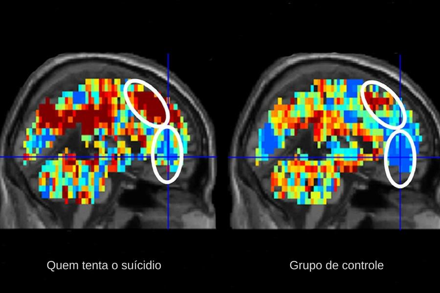 Cérebro de quem tenta o suicídio