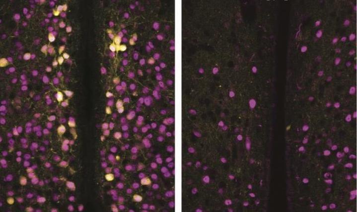 Diferença entre cérebro de cobaia fêmea ( à esquerda )e o cérebro de macho | Crédito: Ryoichi Terayama/LSU