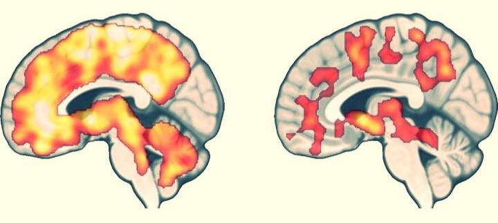 Reação do cérebro a comida